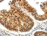 Immunohistochemistry of Human colon cancer using PDCD6 Polyclonal Antibody at dilution of 1:25.