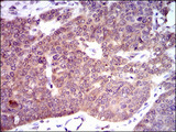 IHC of paraffin-embedded ovarian cancer tissues using PDE1B mouse monoclonal antibody with DAB staining.