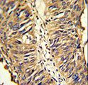 Formalin-fixed and paraffin-embedded human lung carcinoma reacted with PDIA3 Antibody , which was peroxidase-conjugated to the secondary antibody, followed by DAB staining. This data demonstrates the use of this antibody for immunohistochemistry; clinical relevance has not been evaluated.