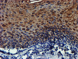 IHC of paraffin-embedded Human tonsil using anti-PDSS2 mouse monoclonal antibody.