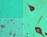 IHC of PER1 in formalin-fixed, paraffin-embedded human brain tissue using an isotype control (top left) and LS-C148631 (bottom left, right) at 5 ug/ml.