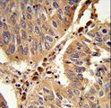 Formalin-fixed and paraffin-embedded human lung carcinoma reacted with PEX16 Antibody , which was peroxidase-conjugated to the secondary antibody, followed by DAB staining. This data demonstrates the use of this antibody for immunohistochemistry; clinical relevance has not been evaluated.