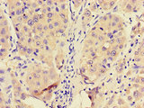 Immunohistochemistry of paraffin-embedded human liver cancer using CSB-PA017821LA01HU at dilution of 1:100