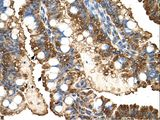 PGK1 antibody LS-C81163 was used in IHC to stain formalin-fixed, paraffin-embedded human intestine.  This image was taken for the unconjugated form of this product. Other forms have not been tested.