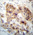 PI15 Antibody immunohistochemistry of formalin-fixed and paraffin-embedded human breast carcinoma followed by peroxidase-conjugated secondary antibody and DAB staining.
