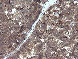 IHC of paraffin-embedded Adenocarcinoma of Human ovary tissue using anti-PIK3R5 mouse monoclonal antibody. (Heat-induced epitope retrieval by 10mM citric buffer, pH6.0, 120°C for 3min).
