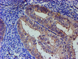 IHC of paraffin-embedded Adenocarcinoma of Human endometrium tissue using anti-PNMA3 mouse monoclonal antibody.