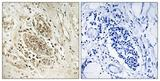 IHC of paraffin-embedded human breast carcinoma tissue, using POLE1 Antibody. The picture on the right is treated with the synthesized peptide.
