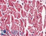 Anti-PPM1G antibody IHC of human heart. Immunohistochemistry of formalin-fixed, paraffin-embedded tissue after heat-induced antigen retrieval. Antibody LS-B2960 concentration 5 ug/ml.