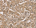 Immunohistochemistry of Human liver cancer using PPP1CC Polyclonal Antibody at dilution of 1:40.