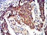 Immunohistochemical analysis of paraffin-embedded stomach cancer tissues using PRKAA2 mouse mAb with DAB staining.