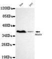 Western blot detection of PRMT6 in Hela&293T cell lysates using PRMT6 antibody (1:1000 diluted).