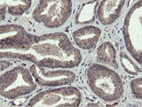 IHC of paraffin-embedded Carcinoma of Human prostate tissue using anti-PROSC mouse monoclonal antibody. (Heat-induced epitope retrieval by 10mM citric buffer, pH6.0, 100C for 10min).