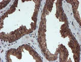 IHC of paraffin-embedded Carcinoma of Human prostate tissue using anti-PSMA6 mouse monoclonal antibody.