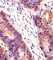 Antibody staining PSMB7 in human colorectal carcinoma tissue sections by Immunohistochemistry (IHC-P - paraformaldehyde-fixed, paraffin-embedded sections). Tissue was fixed with formaldehyde and blocked with 3% BSA for 0. 5 hour at room temperature; antigen retrieval was by heat mediation with a citrate buffer (pH 6). Samples were incubated with primary antibody (1:25) for 1 hours at 37°C. A undiluted biotinylated goat polyvalent antibody was used as the secondary antibody.