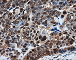 IHC of paraffin-embedded Adenocarcinoma of ovary tissue using anti-PSMC3 mouse monoclonal antibody. (Dilution 1:50).