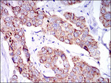 IHC of paraffin-embedded breast cancer tissues using PTPN11 mouse monoclonal antibody with DAB staining.