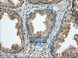 IHC of paraffin-embedded Human prostate tissue using anti-RAB17 mouse monoclonal antibody. (Dilution 1:50).