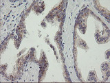 IHC of paraffin-embedded Human prostate tissue using anti-RAB30 mouse monoclonal antibody.
