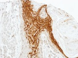 IHC of paraffin-embedded SG xenograft using RAMP2 antibody at 1:100 dilution.