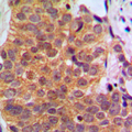 Immunohistochemical analysis of RAR beta staining in human breast cancer formalin fixed paraffin embedded tissue section. The section was pre-treated using heat mediated antigen retrieval with sodium citrate buffer (pH 6.0). The section was then incubated with the antibody at room temperature and detected using an HRP conjugated compact polymer system. DAB was used as the chromogen. The section was then counterstained with hematoxylin and mounted with DPX.