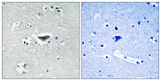 Immunohistochemistry of paraffin-embedded human brain tissue using Ras-GRF1 (Phospho-Ser916) antibody.
