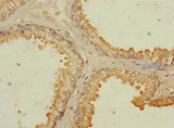 Immunohistochemistry of paraffin-embedded human prostata cancer cancer at dilution 1:100