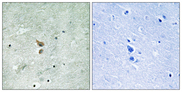 Immunohistochemistry of paraffin-embedded human brain tissue using RIPK2 (Phospho-Ser176) antibody.