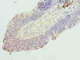 Immunohistochemistry of paraffin-embedded human ovarian cancer using antibody at dilution of 1:100.