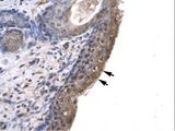 RLIM / RNF12 antibody LS-C29679 was used in IHC to stain formalin-fixed, paraffin-embedded human spermatophore.  This image was taken for the unconjugated form of this product. Other forms have not been tested.