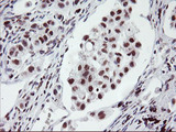 IHC of paraffin-embedded Carcinoma of Human lung tissue using anti-RNF113B mouse monoclonal antibody.