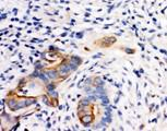 SELE / CD62E / E-selectin antibody. IHC(P): Human Breast Cancer Tissue.
