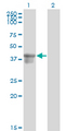 Western Blot analysis of SERPINB3 expression in transfected 293T cell line by SERPINB3 monoclonal antibody (M01), clone 2F5.Lane 1: SERPINB3 transfected lysate(44.6 KDa).Lane 2: Non-transfected lysate.