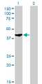 Western Blot analysis of SHOX2 expression in transfected 293T cell line by SHOX2 monoclonal antibody (M01), clone 1D1.Lane 1: SHOX2 transfected lysate(37.6 KDa).Lane 2: Non-transfected lysate.