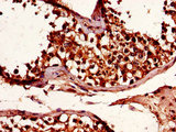 Immunohistochemistry of paraffin-embedded human testis tissue using CSB-PA875720LA01HU at dilution of 1:100