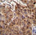 SNX24 Antibody immunohistochemistry of formalin-fixed and paraffin-embedded human breast carcinoma followed by peroxidase-conjugated secondary antibody and DAB staining.