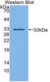 Western blot of recombinant SORD.