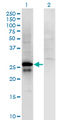 Western Blot analysis of SP2 expression in transfected 293T cell line by SP2 monoclonal antibody (M01), clone 5D3.Lane 1: SP2 transfected lysate (Predicted MW: 25.6 KDa).Lane 2: Non-transfected lysate.