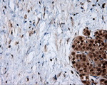 Immunohistochemical staining of paraffin-embedded Carcinoma of pancreas tissue using anti-SRR mouse monoclonal antibody. (Dilution 1:50).