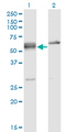 Western blot of SFRS6 expression in transfected 293T cell line by SFRS6 monoclonal antibody (M02), clone 5G6.