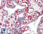 Human Placenta: Formalin-Fixed, Paraffin-Embedded (FFPE)