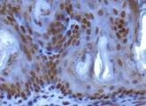 Immunohistochemistry: SUV420h1 Antibody - IHC analysis of SUV420h1 in mouse epidermis using DAB with hematoxylin counterstain.  This image was taken for the unconjugated form of this product. Other forms have not been tested.