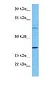 Western blot of TAAR6 Antibody with human MCF7 Whole Cell lysate.  This image was taken for the unconjugated form of this product. Other forms have not been tested.