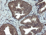 IHC of paraffin-embedded Human prostate tissue using anti-TBCC mouse monoclonal antibody.