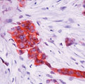 Formalin-fixed, paraffin-embedded human breast cancer stained with peroxidase-conjugate and AEC chromogen. Note cytoplasmic staining of tumor cells.  This image was taken for the unmodified form of this product. Other forms have not been tested.