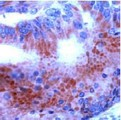 Colon carcinoma stained with anti-Thyroid hormone receptor alpha 1/alpha 2