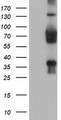 HEK293T cells were transfected with the pCMV6-ENTRY control (Left lane) or pCMV6-ENTRY TLE2 (Right lane) cDNA for 48 hrs and lysed. Equivalent amounts of cell lysates (5 ug per lane) were separated by SDS-PAGE and immunoblotted with anti-TLE2.