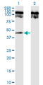 Western blot of TNFRSF19 expression in transfected 293T cell line by TNFRSF19 monoclonal antibody (M02), clone 1H6.