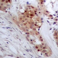 Immunohistochemical analysis of TP53INP2 staining in human breast cancer formalin fixed paraffin embedded tissue section. The section was pre-treated using heat mediated antigen retrieval with sodium citrate buffer (pH 6.0). The section was then incubated with the antibody at room temperature and detected using an HRP polymer system. DAB was used as the chromogen. The section was then counterstained with hematoxylin and mounted with DPX.