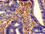 Immunohistochemistry of paraffin-embedded human colon cancer using CSB-PA024106LA01HU at dilution of 1:100